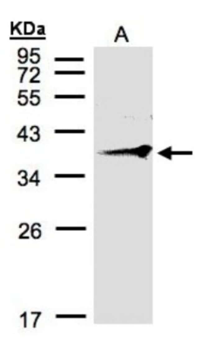 anti-RNF2, Polyclonal, Novus Biologicals 0.1mg; Unlabeled:Life Sciences