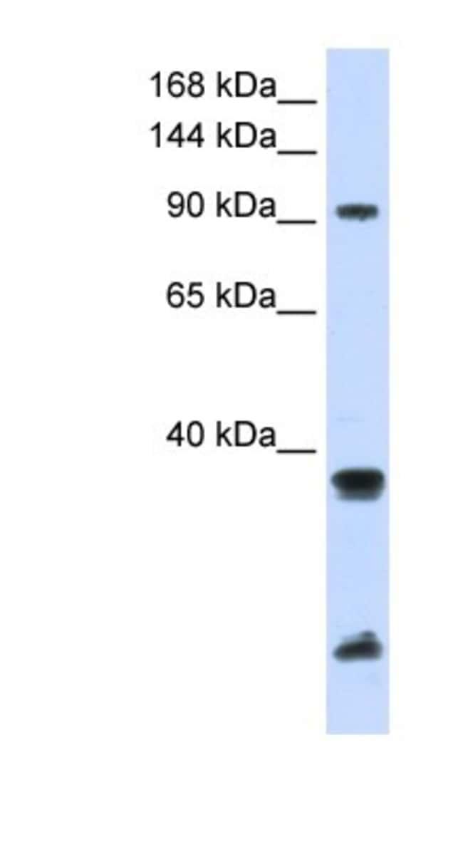 RNF20 Rabbit anti-Human, Polyclonal, Novus Biologicals 20µL; Unlabeled