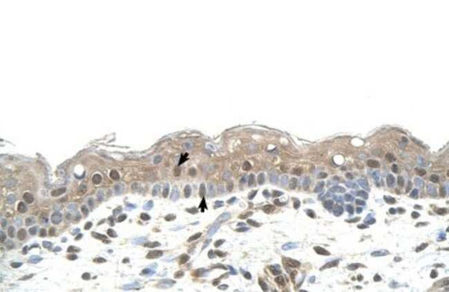 RNF25 Rabbit anti-Human, Polyclonal, Novus Biologicals 100µL; Unlabeled:Life