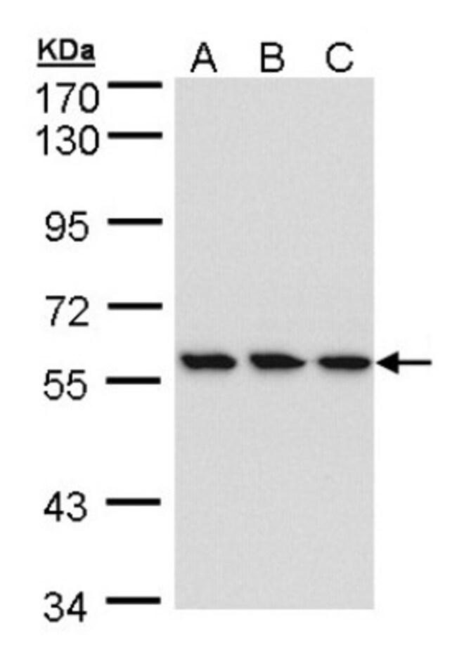 anti-RNGTT, Polyclonal, Novus Biologicals 0.1mL; Unlabeled:Life Sciences