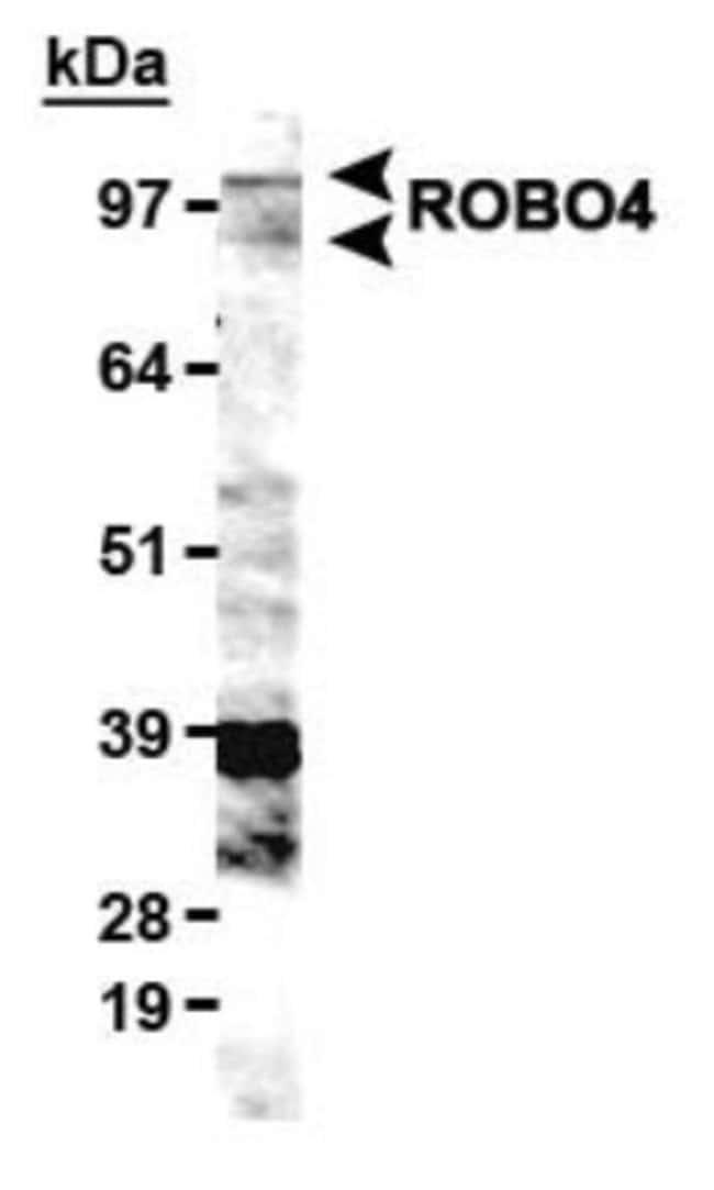 anti-ROBO4, Polyclonal, Novus Biologicals:Antibodies:Primary Antibodies