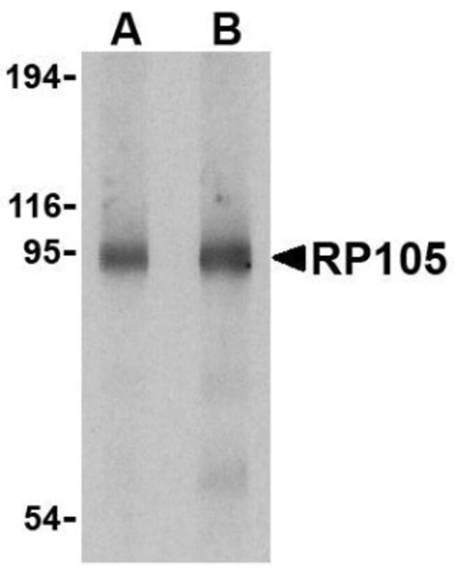 anti-RP105/CD180, Polyclonal, Novus Biologicals 0.1mg; Unlabeled:Life Sciences