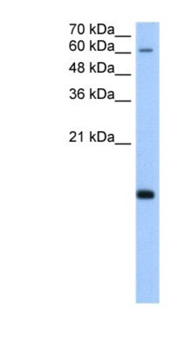 RPB8 Rabbit anti-Human, Polyclonal, Novus Biologicals 100µL; Unlabeled:Life