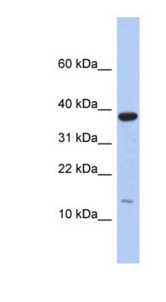 RPL27 Rabbit anti-Human, Polyclonal, Novus Biologicals 100µL; Unlabeled:Life