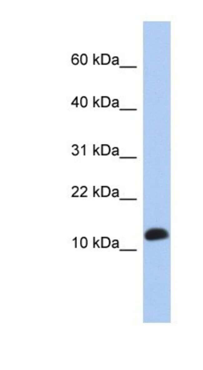 RPL30 Rabbit anti-Human, Polyclonal, Novus Biologicals 20µL; Unlabeled