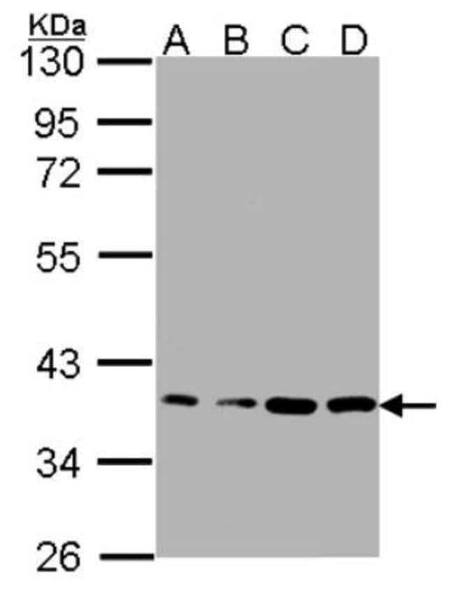 anti-RPL5, Polyclonal, Novus Biologicals 0.1mL; Unlabeled:Antibodies