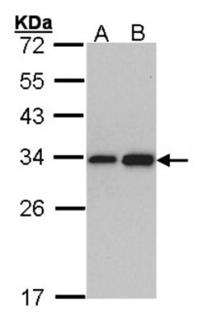 anti-RPL8, Polyclonal, Novus Biologicals 0.1mL; Unlabeled:Life Sciences