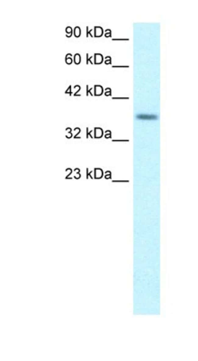 RPS16 Rabbit anti-Human, Polyclonal, Novus Biologicals 100µL; Unlabeled:Life