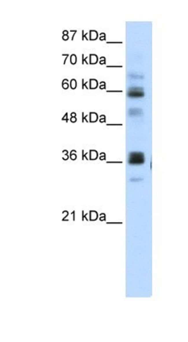 RPUSD2 Rabbit anti-Human, Polyclonal, Novus Biologicals 20µL; Unlabeled