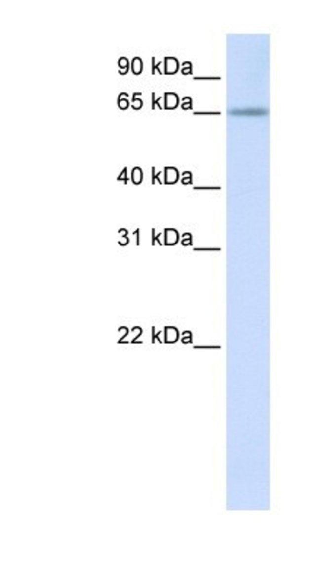 RSPRY1 Rabbit anti-Human, Polyclonal, Novus Biologicals 20µL; Unlabeled