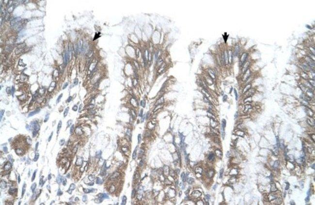 RSRC2 Rabbit anti-Human, Polyclonal, Novus Biologicals 100µL; Unlabeled:Life