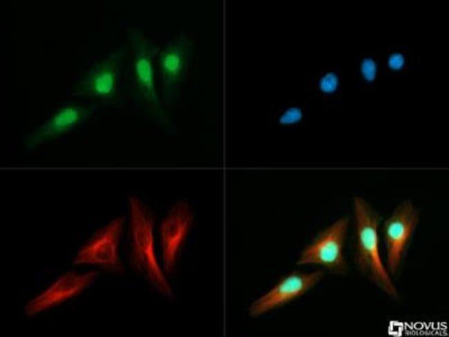 anti-RTEL1, Polyclonal, Novus Biologicals:Antibodies:Primary Antibodies