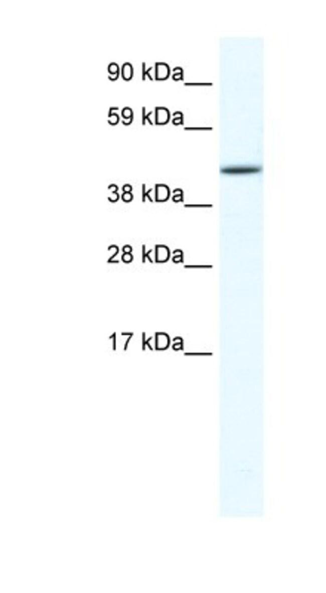 anti-RUNX3/CBFA3, Polyclonal, Novus Biologicals 0.1mg; Unlabeled:Life Sciences
