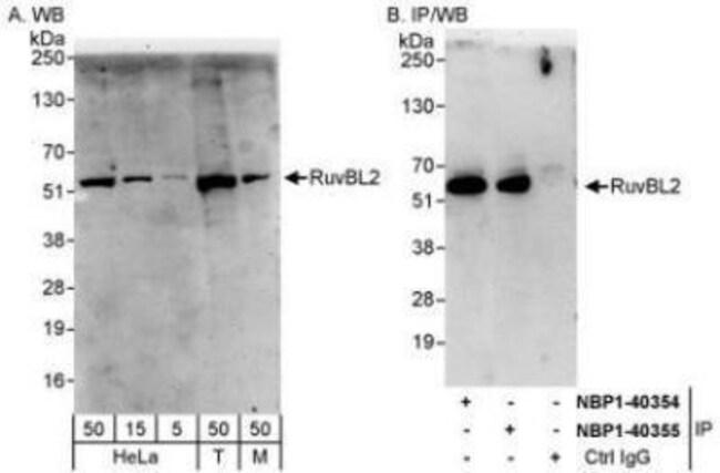 anti-RUVBL2, Polyclonal, Novus Biologicals 0.1mg; Unlabeled:Life Sciences