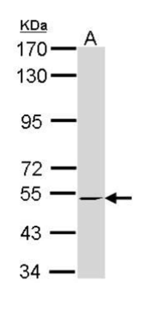 anti-RXR beta/NR2B2, Polyclonal, Novus Biologicals 0.1mL; Unlabeled:Life