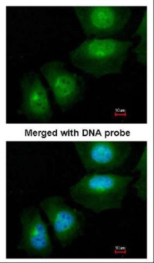 anti-S100A11, Polyclonal, Novus Biologicals 0.1mg; Unlabeled:Life Sciences
