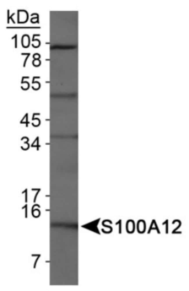 anti-EN-RAGE/S100A12, Polyclonal, Novus Biologicals:Antibodies:Primary