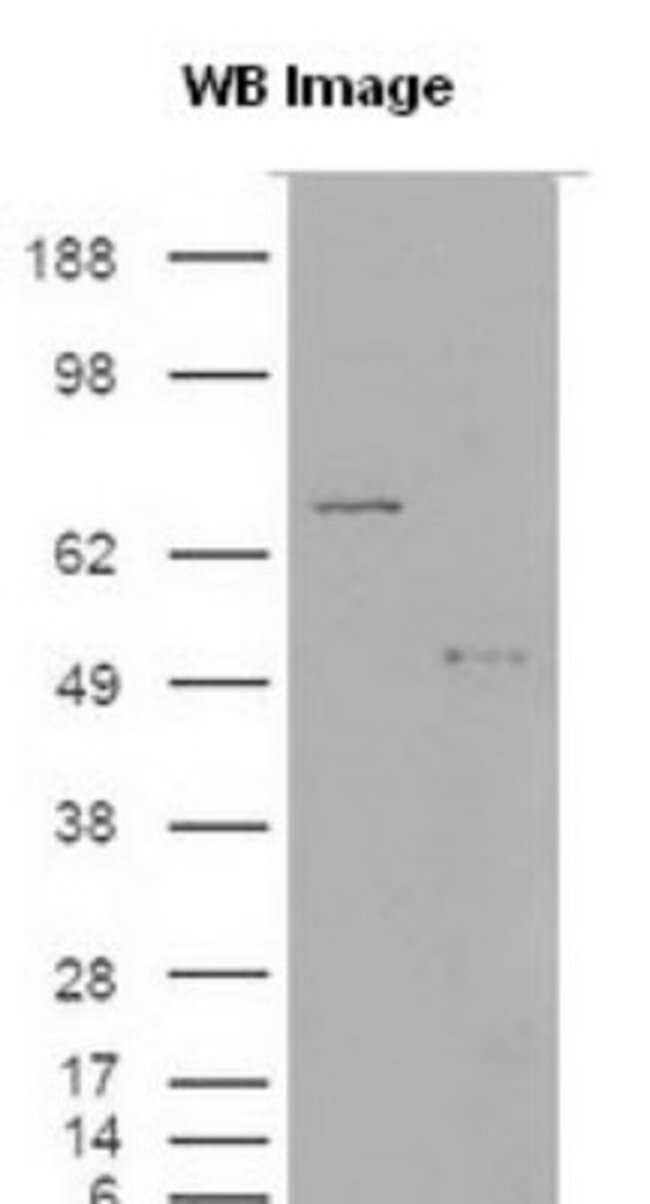 anti-S100A9, Polyclonal, Novus Biologicals:Antibodies:Primary Antibodies