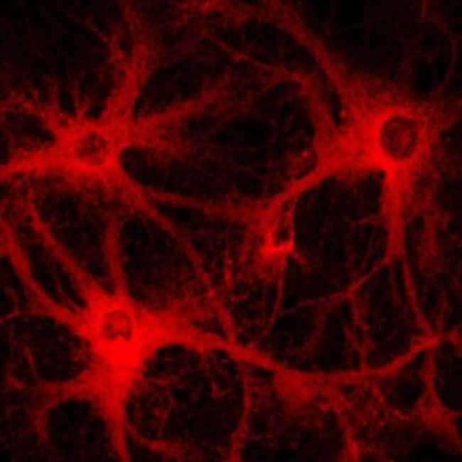 S100B Mouse anti-Human, Mouse, Rat, Clone: SA-12, Novus Biologicals 0.025mg;