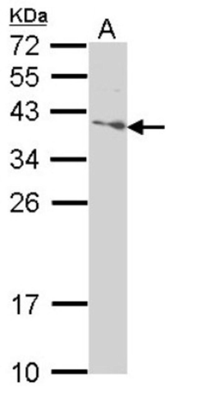 anti-SAP30BP, Polyclonal, Novus Biologicals 0.1mL; Unlabeled:Antibodies