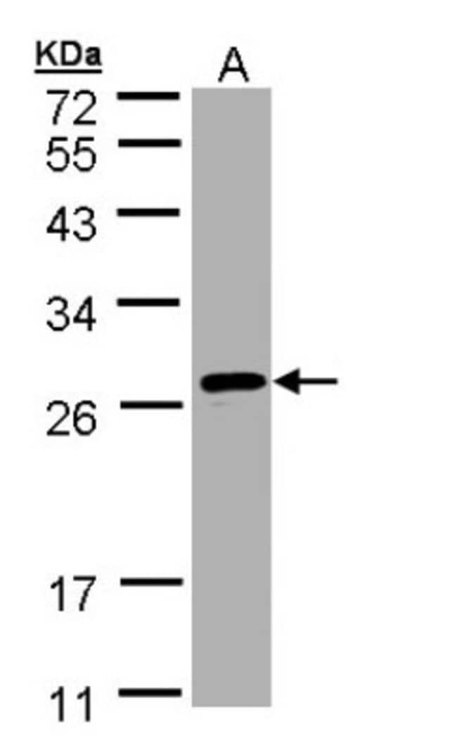 anti-SAR1B, Polyclonal, Novus Biologicals 0.1mg; Unlabeled:Life Sciences