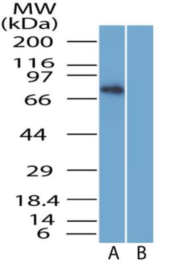 anti-SARM1, Polyclonal, Novus Biologicals:Antibodies:Primary Antibodies
