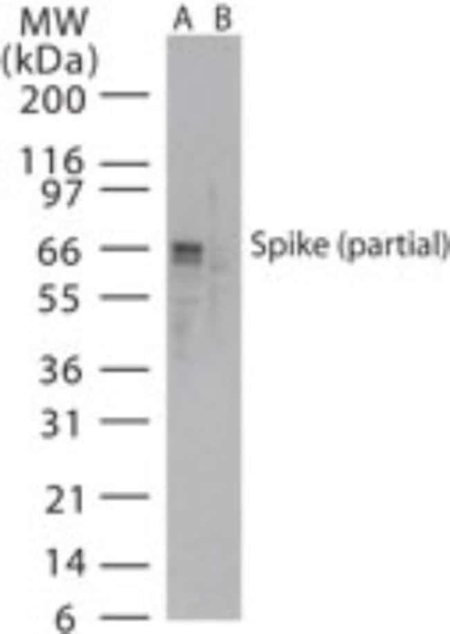 anti-Sars Spike Protein, Polyclonal, Novus Biologicals:Antibodies:Primary