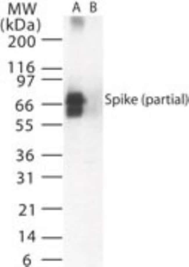Sars Spike Protein Rabbit anti-Virus, Polyclonal, Novus Biologicals:Antibodies:Primary
