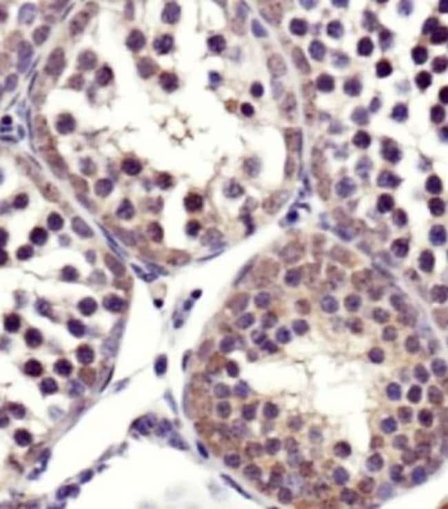 anti-SART1, Polyclonal, Novus Biologicals:Antibodies:Primary Antibodies