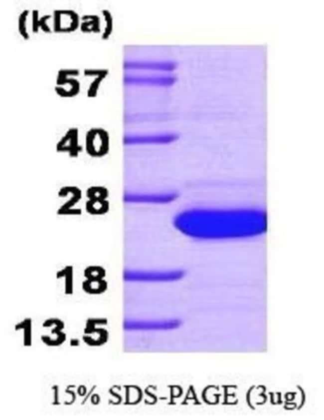 Novus Biologicals Human SAT1 Protein 0.1mg; Unlabeled:Life Sciences