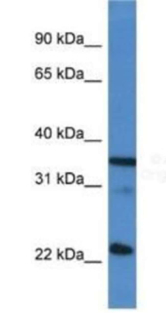 SC35 Rabbit anti-Human, Polyclonal, Novus Biologicals 100µL; Unlabeled:Life