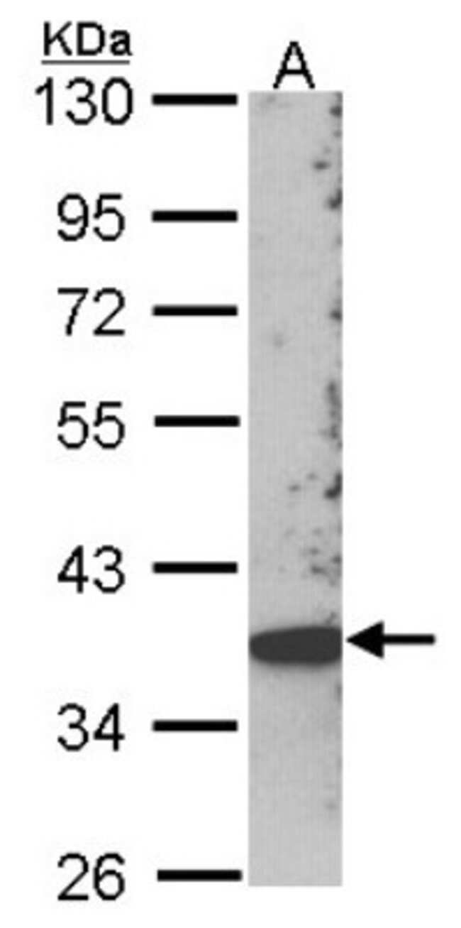 anti-SCAP2, Polyclonal, Novus Biologicals 0.1mg; Unlabeled:Life Sciences