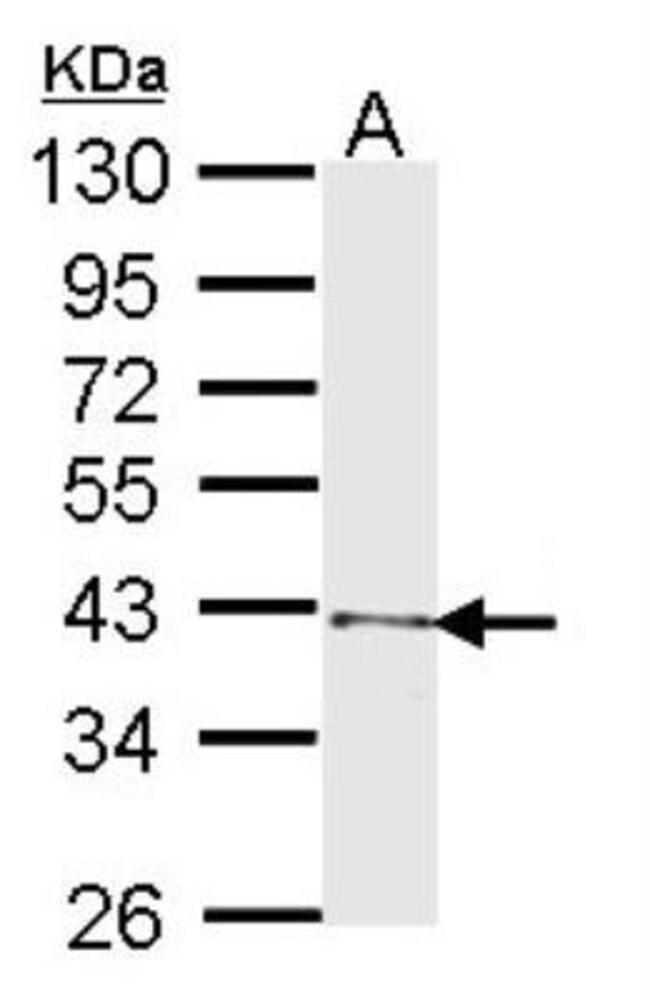 anti-SCL/Tal1, Polyclonal, Novus Biologicals 0.1mg; Unlabeled:Life Sciences