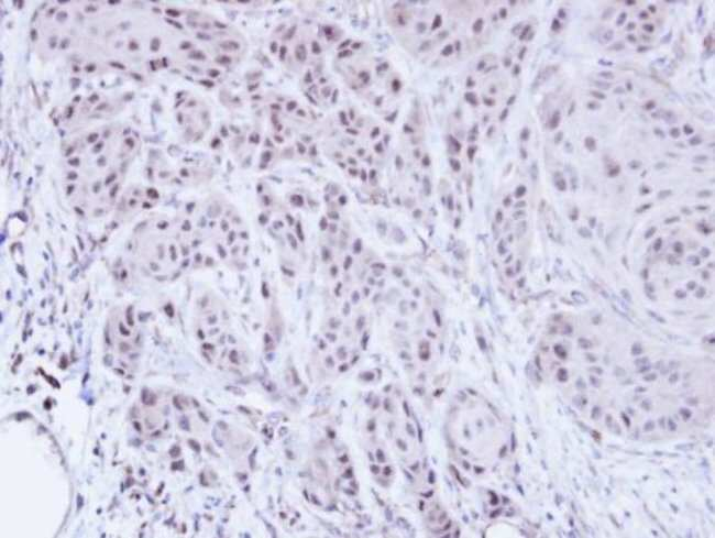 anti-SCMH1, Polyclonal, Novus Biologicals 0.1mg; Unlabeled:Life Sciences