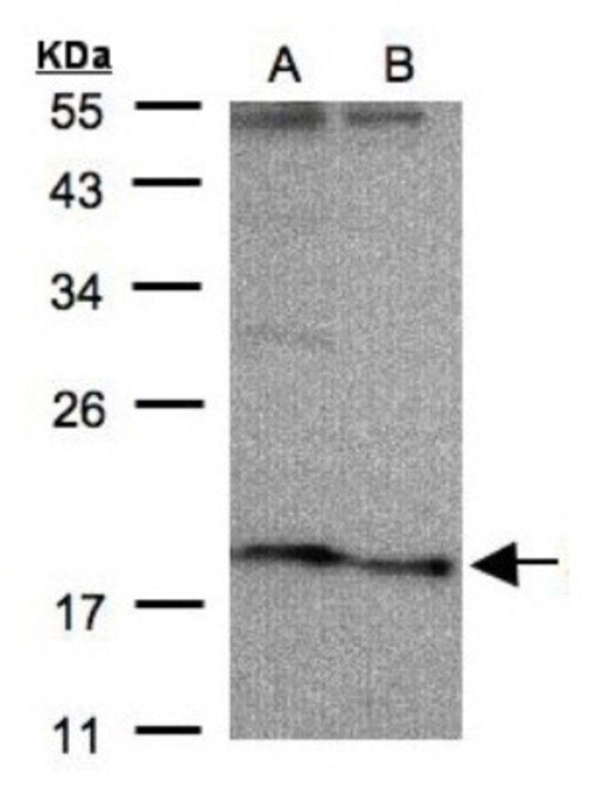 anti-SCN3B, Polyclonal, Novus Biologicals 0.1mL; Unlabeled:Life Sciences