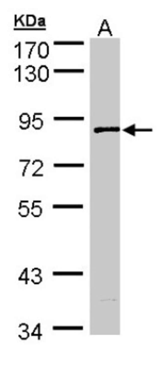 anti-SCY1 like 3, Polyclonal, Novus Biologicals 0.1mg; Unlabeled:Antibodies