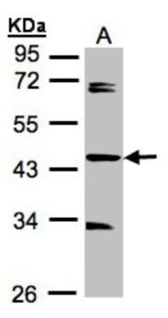 anti-SDCCAG3, Polyclonal, Novus Biologicals 0.1mg; Unlabeled:Life Sciences