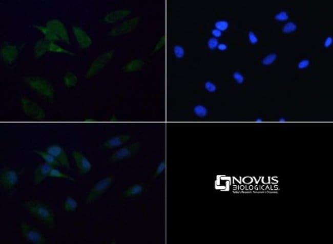 anti-SDHB, Polyclonal, Novus Biologicals:Antibodies:Primary Antibodies
