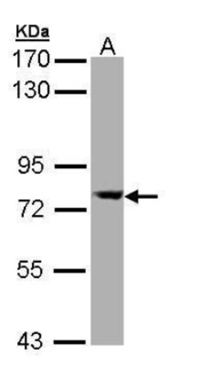 anti-SEC23A, Polyclonal, Novus Biologicals 0.1mg; Unlabeled:Life Sciences