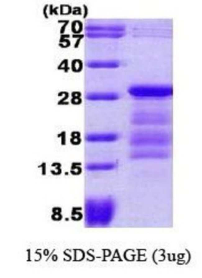 Novus Biologicals Recombinant Human PTTG1 Protein 0.1mg; Unlabeled:Life