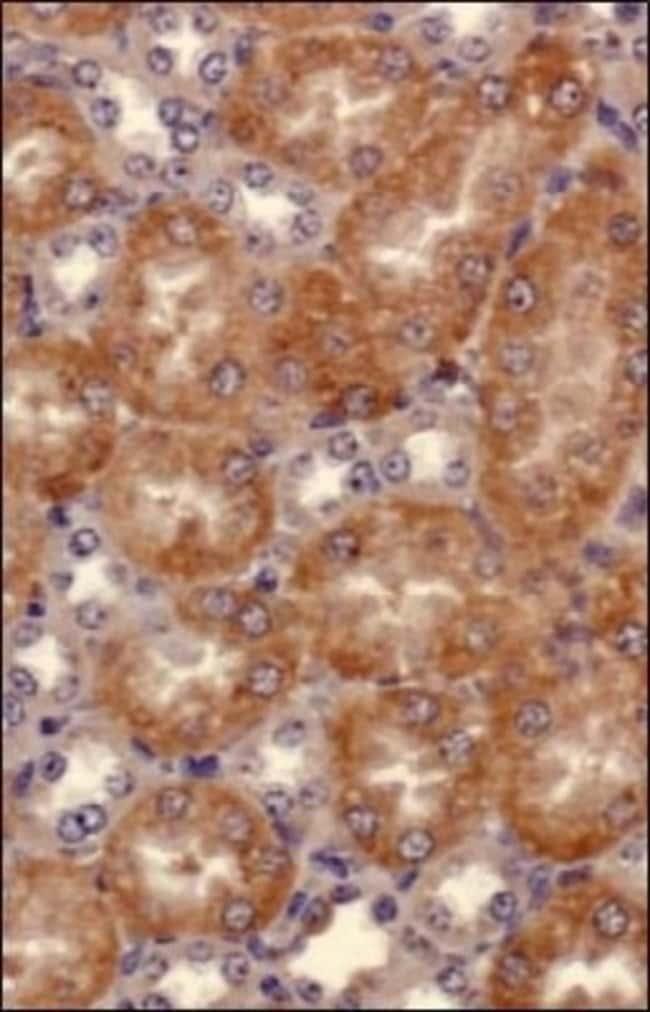 anti-Semaphorin 3B, Polyclonal, Novus Biologicals:Antibodies:Primary Antibodies