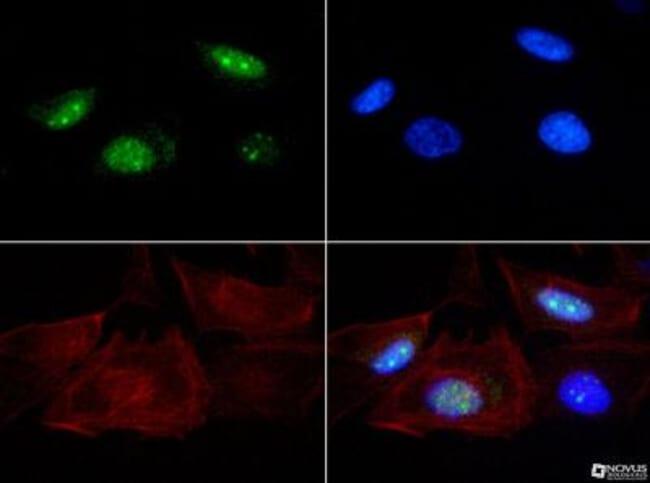 anti-Senataxin, Polyclonal, Novus Biologicals:Antibodies:Primary Antibodies
