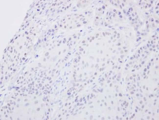 anti-SENP2, Polyclonal, Novus Biologicals 0.1mg; Unlabeled:Life Sciences