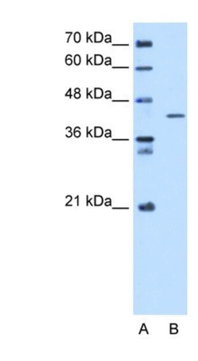 SEPHS1 Rabbit anti-Human, Polyclonal, Novus Biologicals 20µL; Unlabeled