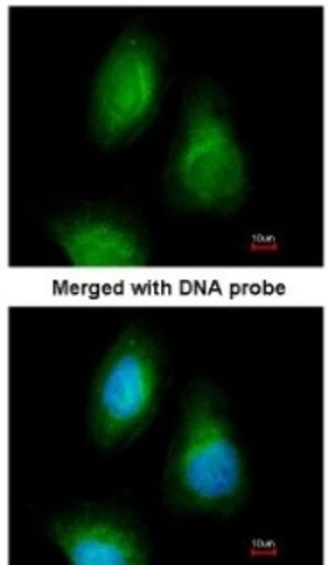 anti-SEPHS2, Polyclonal, Novus Biologicals 0.1mg; Unlabeled:Life Sciences