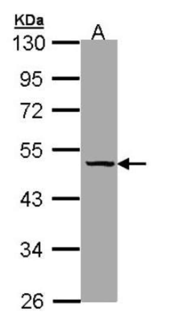 anti-Serpin A7/TBG, Polyclonal, Novus Biologicals 0.1mg; Unlabeled:Life