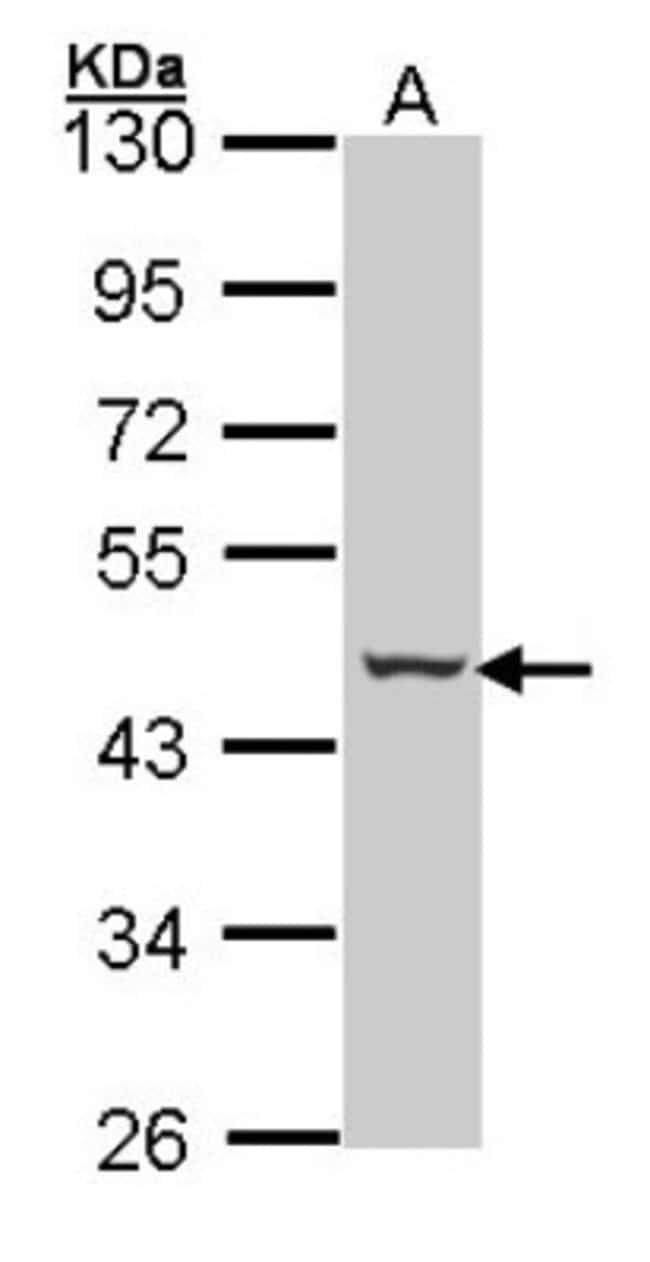 anti-SerpinB2, Polyclonal, Novus Biologicals 0.1mL; Unlabeled:Life Sciences