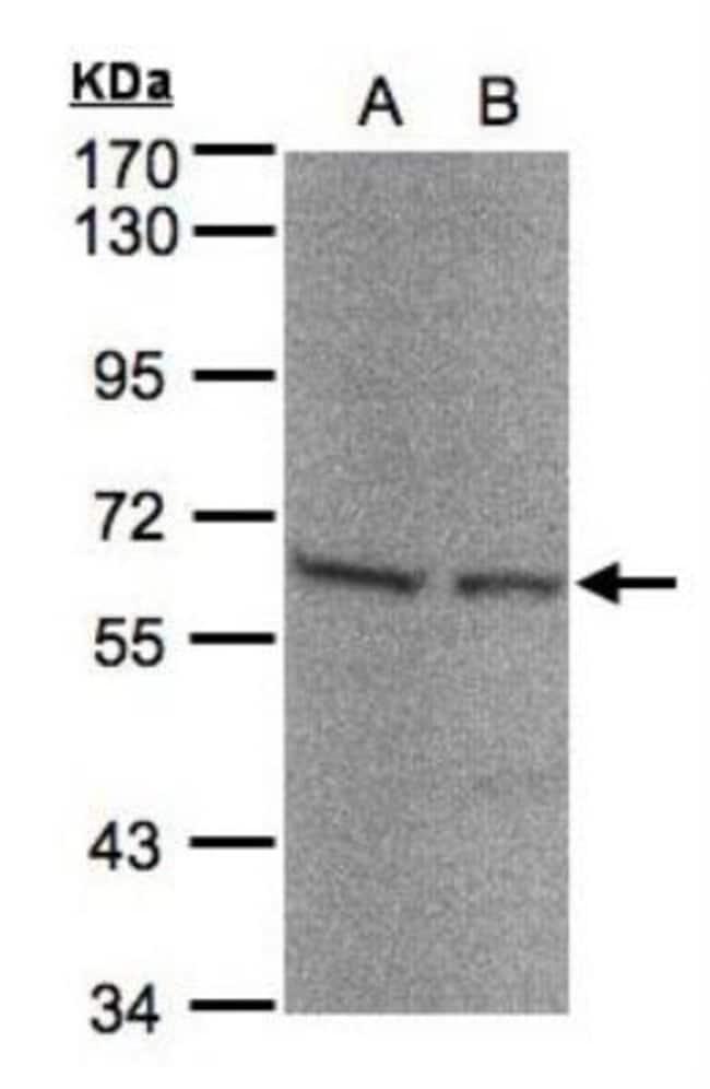 anti-Seryl tRNA synthetase, Polyclonal, Novus Biologicals 0.1mL; Unlabeled:Life