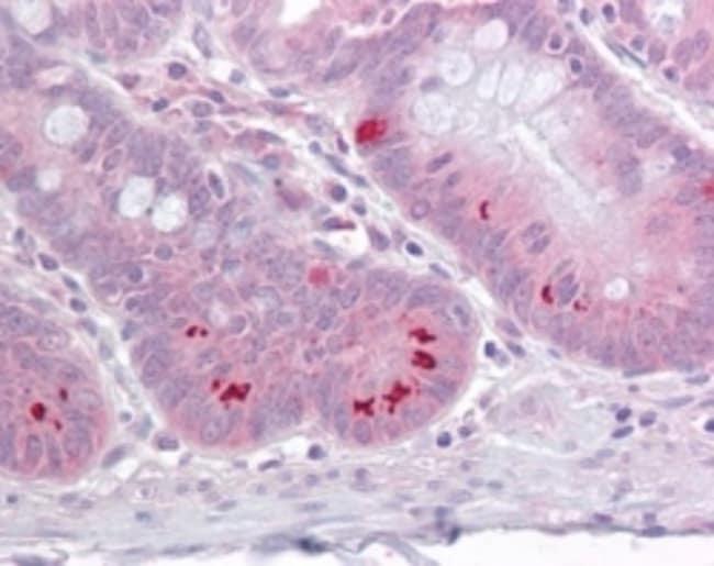 anti-SETD7/9, Polyclonal, Novus Biologicals:Antibodies:Primary Antibodies