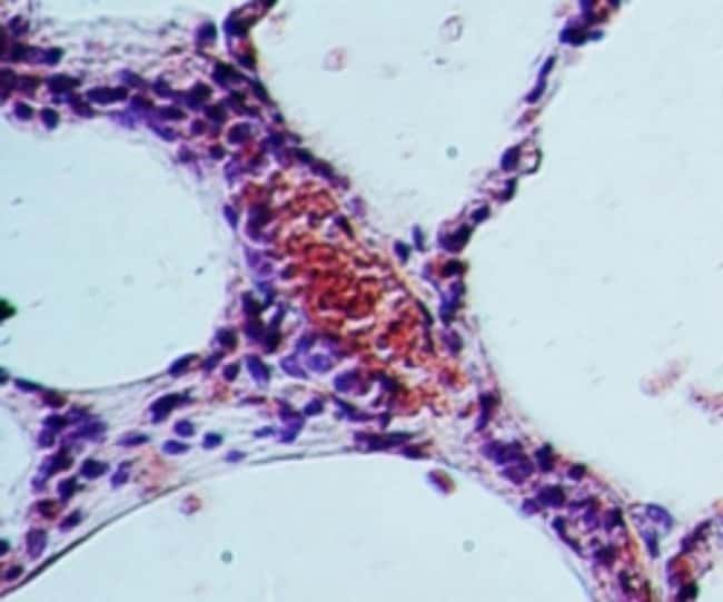 anti-SGK, Polyclonal, Novus Biologicals:Antibodies:Primary Antibodies